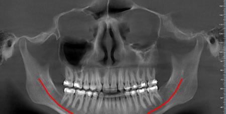vgi-evo_ped-mxf-per-cura-ortodontica_1