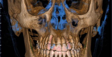 Giano HR - 16x18 - Ortognatica Case study3D